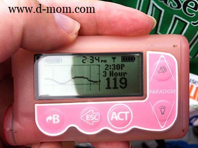 Running with a continuous glucose monitor